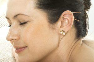 oere-akupunktur hos Beauty Balance
